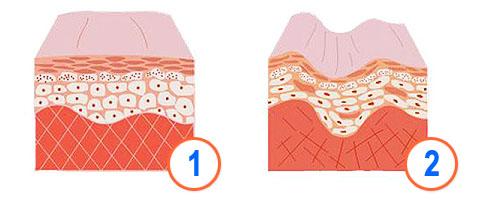 Пептид коллагена ХуаШен - Косметический эффект, замедление процесса старения